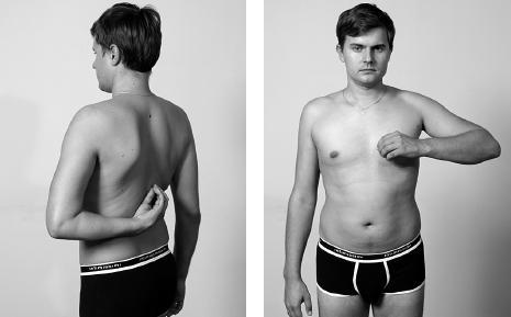 Боли при мочеиспускание у мужчин причины лечение